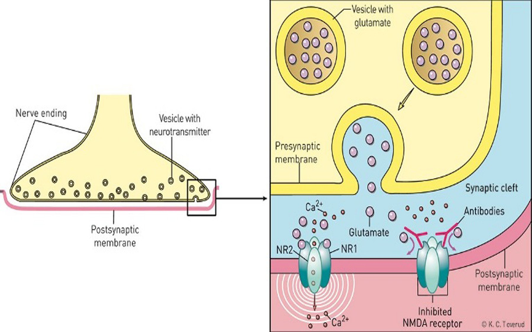 Anti Nmdar Encephalitis Brain Inflammation Symptoms Treatments