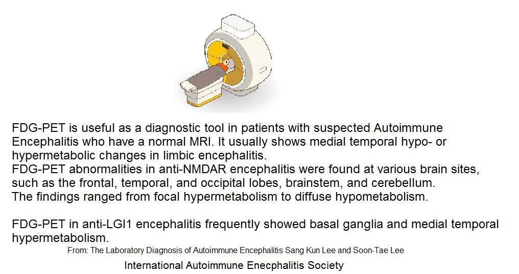 FDG Pet - Memes About Autoimmune-Encephalitis