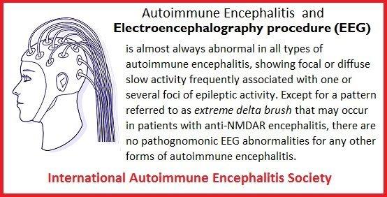 eeg - Memes About Autoimmune-Encephalitis