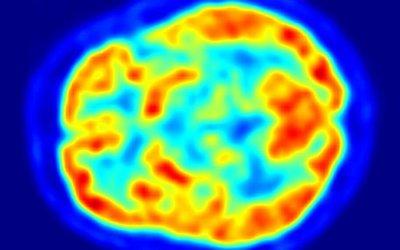 Diagnosing autoimmune encephalitis: a role for 18F-FDG PET imaging