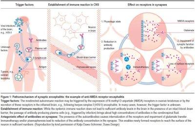 Pathomechanism of synaptic encephalitis example of anti NMDA receptor encephalitis Leypoldt Autoantibody Mediated Encephalitis - anti-NMDAr Encephalitis