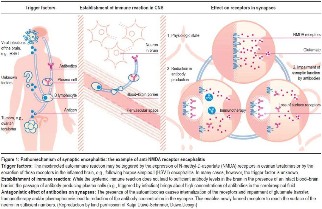 Pathomechanism of synaptic encephalitis- example of anti-NMDA receptor encephalitis-Leypoldt-Autoantibody-Mediated Encephalitis
