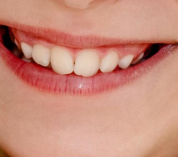 cavidad-frente-diente