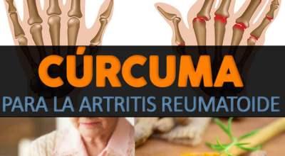 remedios-naturales-para-la-artritis