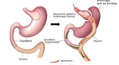 diferencia-entre-cirugia-bariatrica-y-metabolica