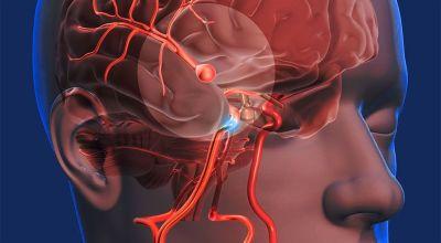 preguntandose-como-se-relaciona-la-sinusitis-isquemica-con-el-accidente-cerebrovascular