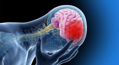 tipos-de-accidentes-cerebrovasculares-precauciones-tratamiento