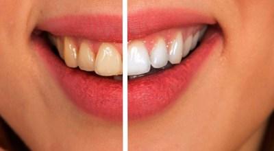 17-remedios-caseros-consejos-para-el-tratamiento-de-blanqueamiento-dental
