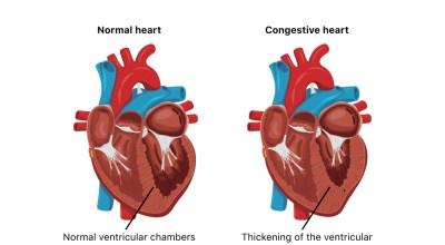 cuidado-con-estos-sintomas-de-insuficiencia-cardiaca-congestiva