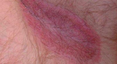 jock-itch-tinea-cruris-causa-sintomas-y-prevencion
