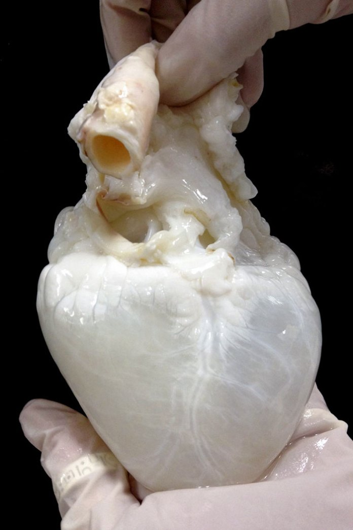 A Cleaned Heart