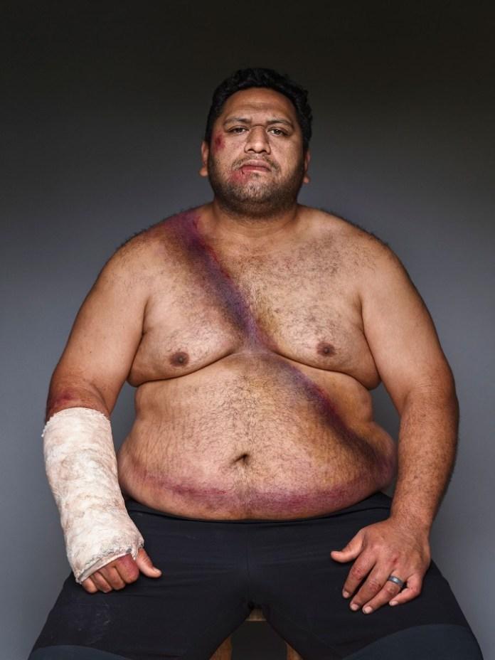 fat injured man