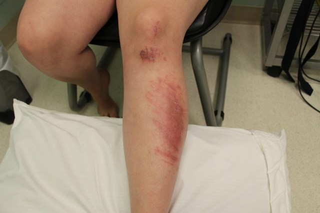 avalon-laser-health-road-rash-to-recovery-after