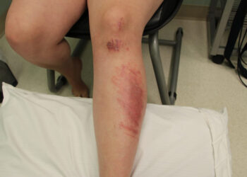 Road (Rash) to Recovery