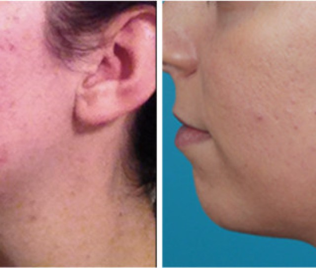 Recurring Facial Pimples Treatment Beverly Hills