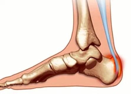A láb ízületei gyulladtak, mint hogy kezeljék. Hogyan kezelik az infekt arthritist?