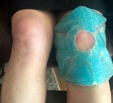 7 Ways to Prevent Cycling Knee Pain