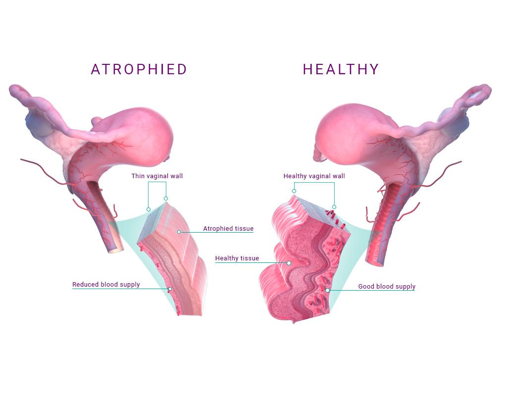 AVeta Medical Vaginal Atrophy diagram.
