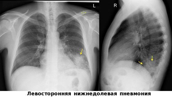 Pnevmoniya rentgenogrammasi