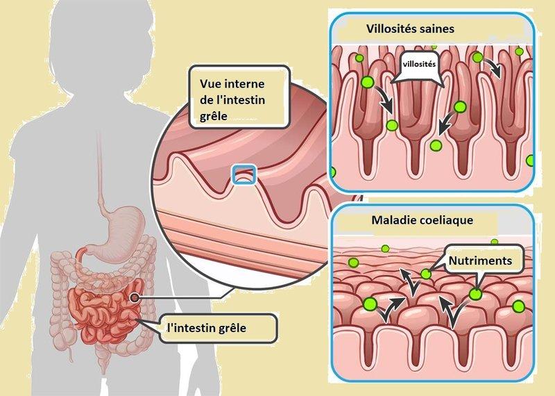 Intolérance au gluten & maladie cœliaque