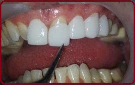 prix d'une facette dentaire