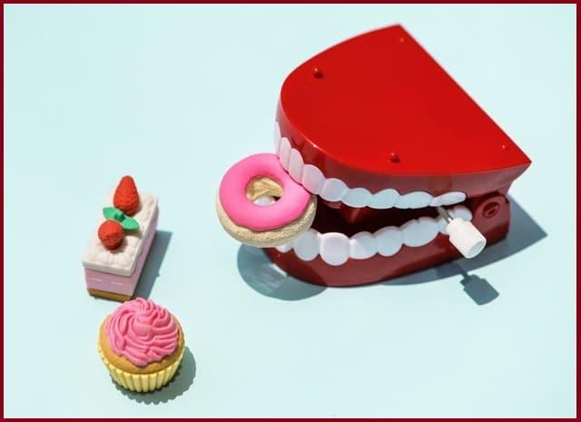 Facettes dentaires: comment avoir les dents blanches