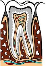 traitement abcès dentaire