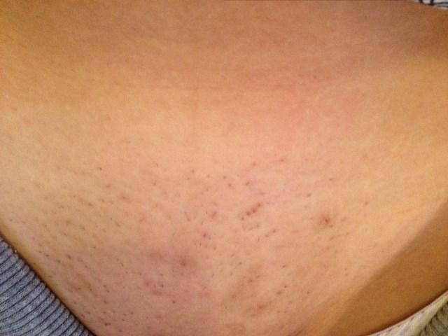 Kiütések borotválás után: mit tehetünk ellenük?