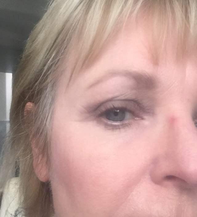 nose indentation from wearing heavy eyeglasses