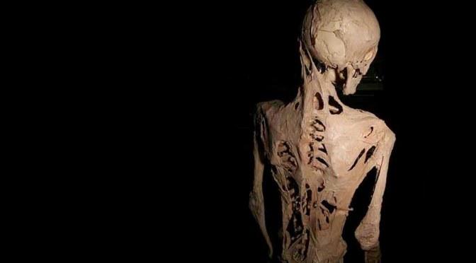 stone man syndrome rare horrible diseas
