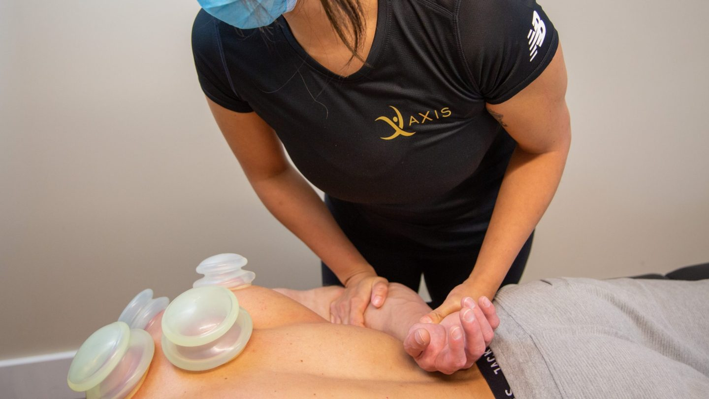 Cupping Therapy in Scarborough