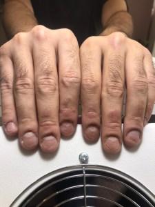 Erkek tırnakları - Protez tırnaktan önce.
