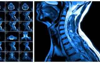 aycan MRI of cervical spine