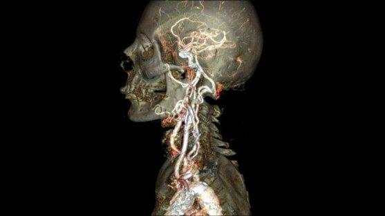 Foto Luar Biasa Yang Belum Pernah Anda Lihat - Gambar-Foto-Keakuratan-Scanner-CT-merek-GE-terbaru