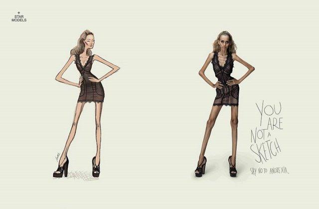 Iklan Layanan Masyarakat Paling Mengena - Iklan-tentang-Anorexia