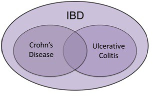 आंतो की सूजन बड़ी आंत की सूजन (IBD) IBS ulcerative colitis crohn ke lakshan upchar ilaj aanto me sujan ka ilaj symptoms of ibd in hindi  ibd treatment in ayurveda in hindi  crohn's meaning in hindi  crohn's disease treatment in hindi  bowel inflammation treatment  crohn's disease meaning in hindi  crohn's disease in ayurveda  intestine disease in hindi