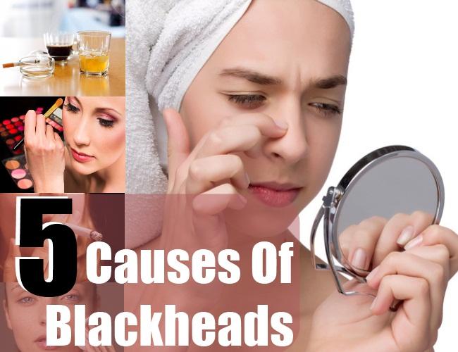Blackheads