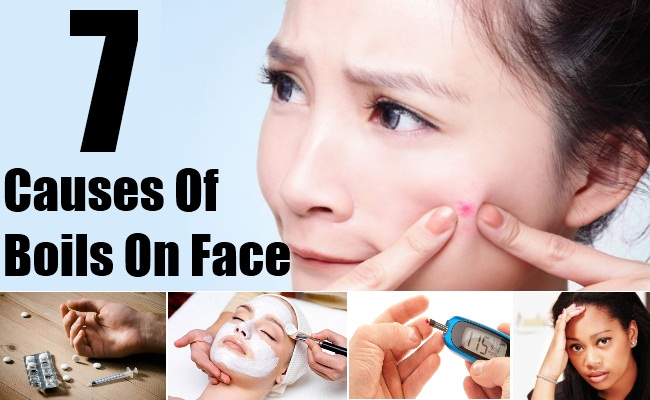 Causes Of Boils On Face