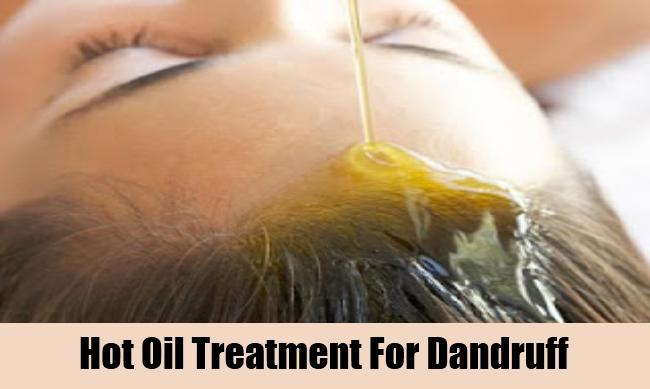 Hot Oil Treatment For Dandruff