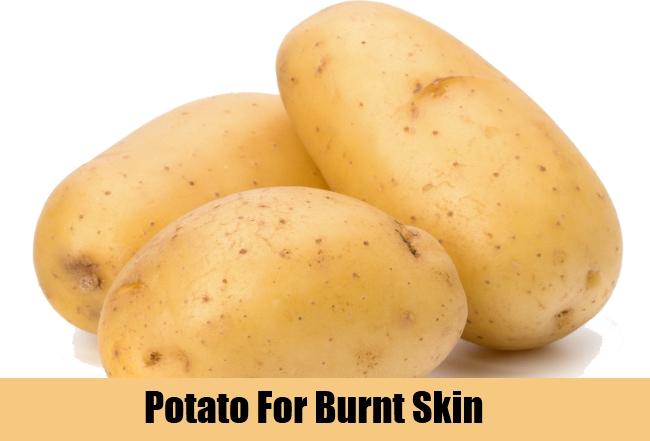 Potato For Burnt Skin