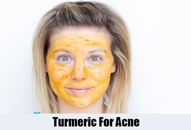 Turmeric For Acne