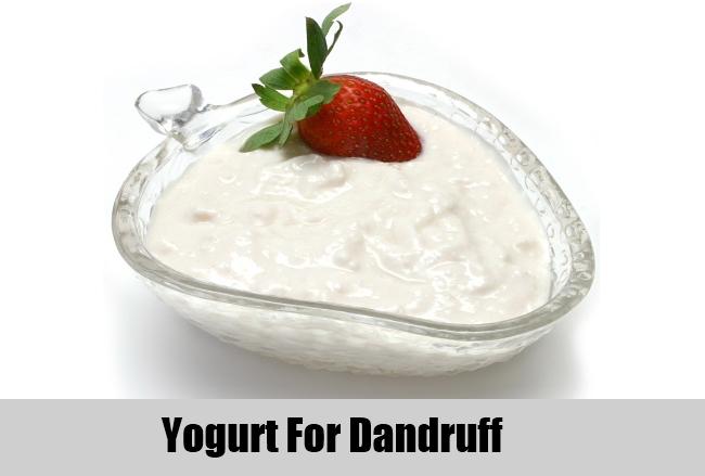 Yogurt For Dandruff