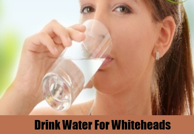 Drink Water For Whiteheads