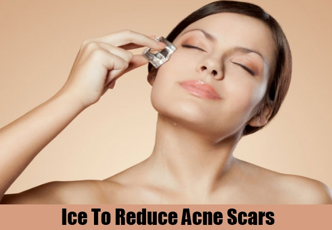 Ice To Reduce Acne Scars