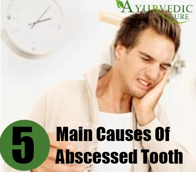 Main Causes Of Abscessed Tooth