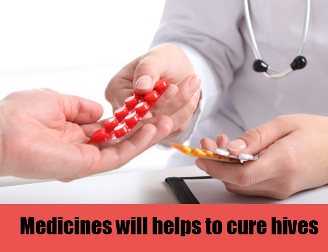 Medicines Will Helps To Cure Hives