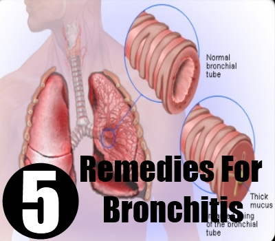 5 Best Home Remedies For Bronchitis