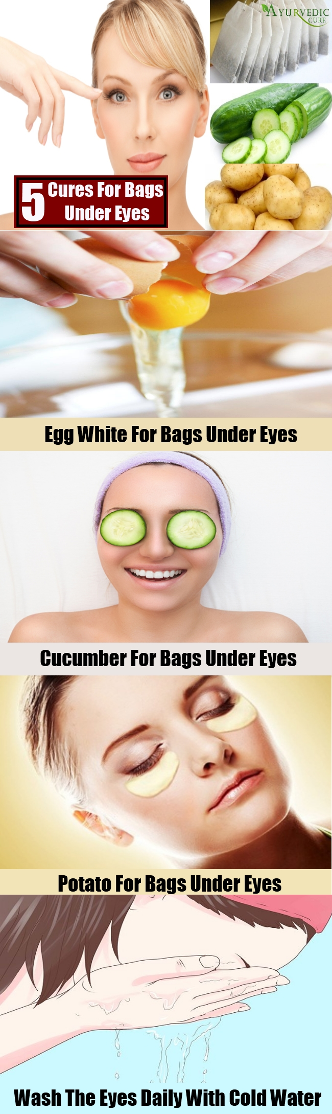 Top 5 Natural Cures For Bags Under Eyes