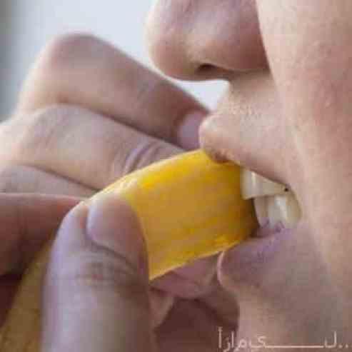 تبييض الأسنان بالموز