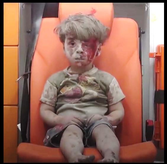 طفل حلب